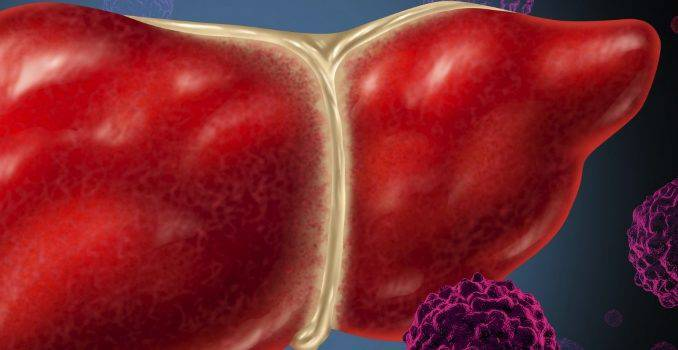 Все симптомы гепатита В