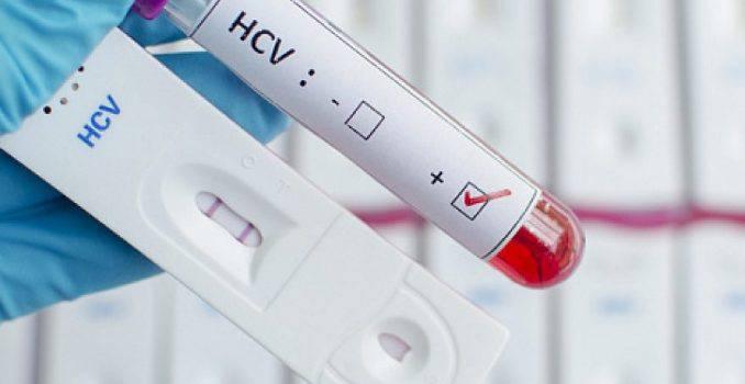 Анализы на гепатит B