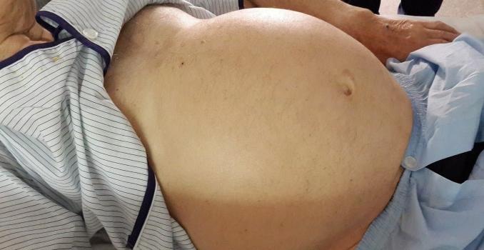 Асцит при циррозе печени: что это и как лечить?