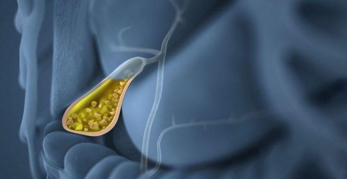 Обострение хронического холецистита: симптомы и лечение