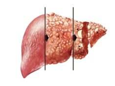 Хронический гепатит В: симптомы и лечение