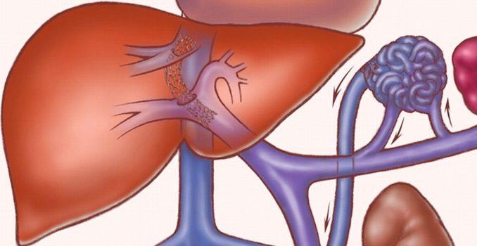 Цирроз печени: лечение народными средствами и методами