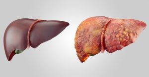 Классификация цирроза печени по Child Pugh