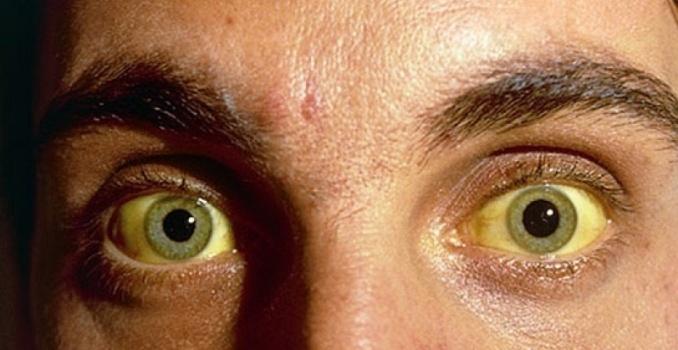Цирроз печени на последней стадии: фото людей и печени