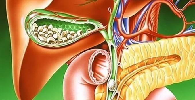 Холецистит хронический: симптомы и лечение, признаки и клинические рекомендации