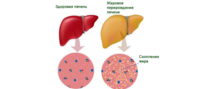 Жировая клетчатка печени
