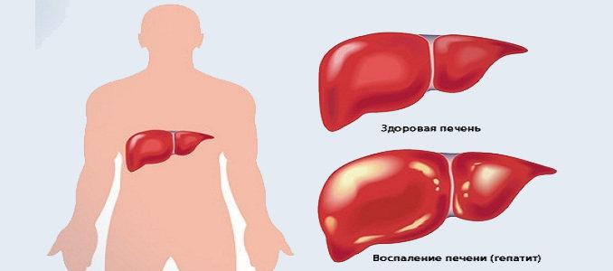 Воспаление печени: симптомы и лечение в домашних условиях