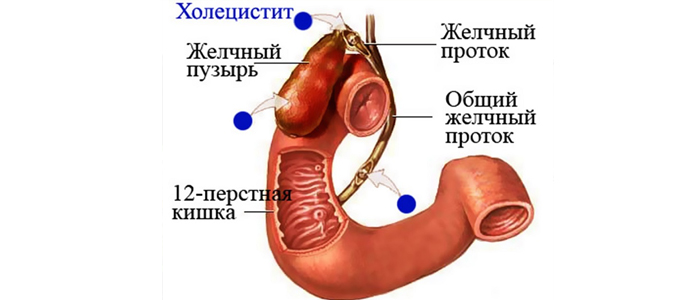 Осложнения острого и хронического холецистита