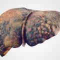 Токсическое поражение печени: виды, симптомы, лечение