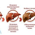 Эхоструктура печени: виды и лечение