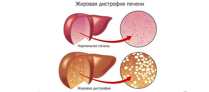 Жировая дистрофия печени: симптомы и лечение
