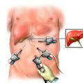 Лечение печени после удаления желчного пузыря