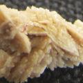 Кальцинаты в печени: что это такое, причины и методы лечения