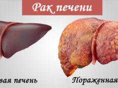 Рак печени - лечение возможно, методы и препараты
