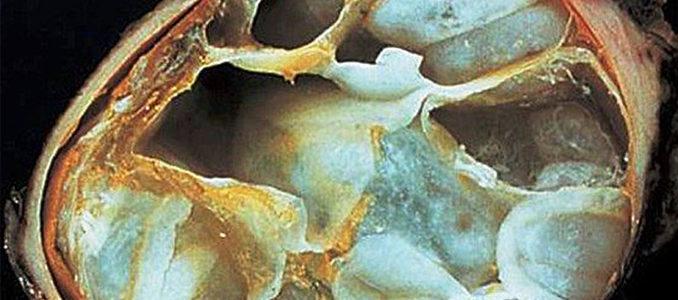 Эхинококкоз печени: симптомы и лечение